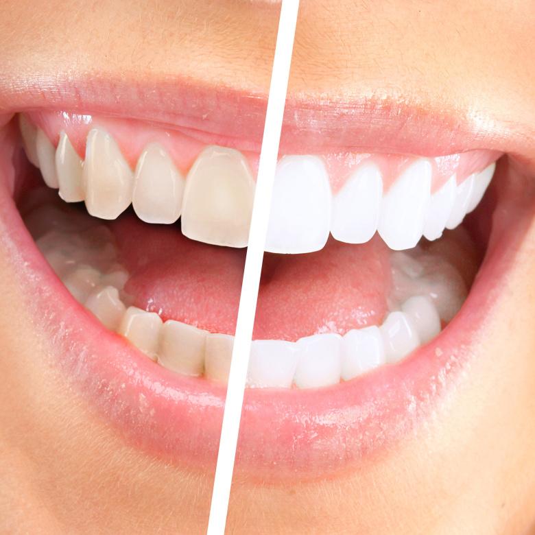Beleni zubu