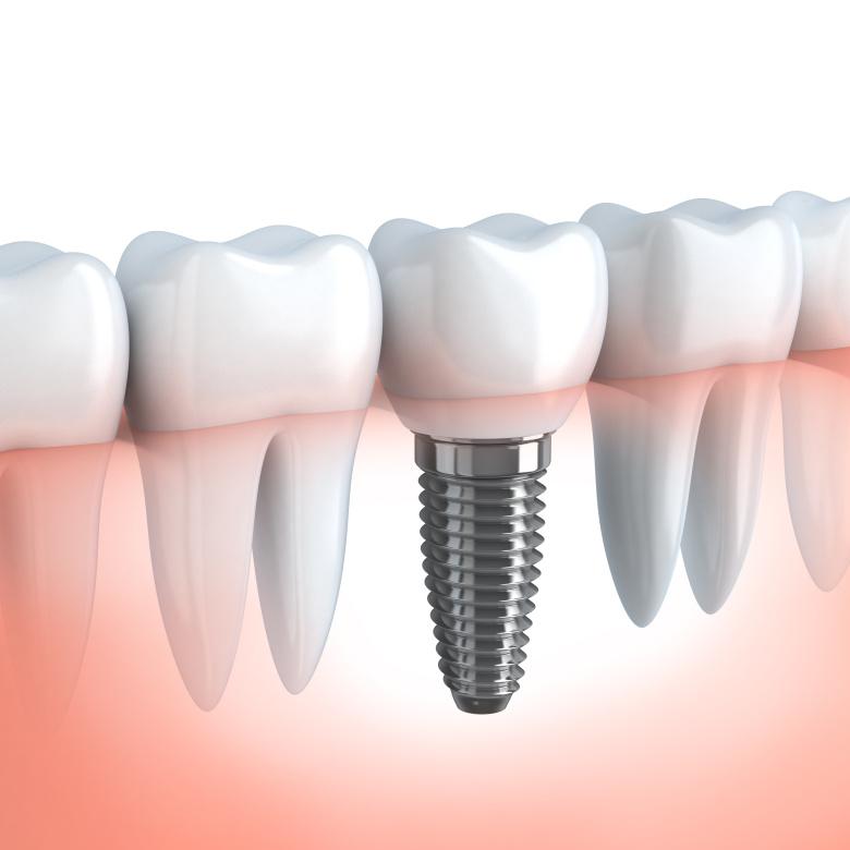 Implantaty